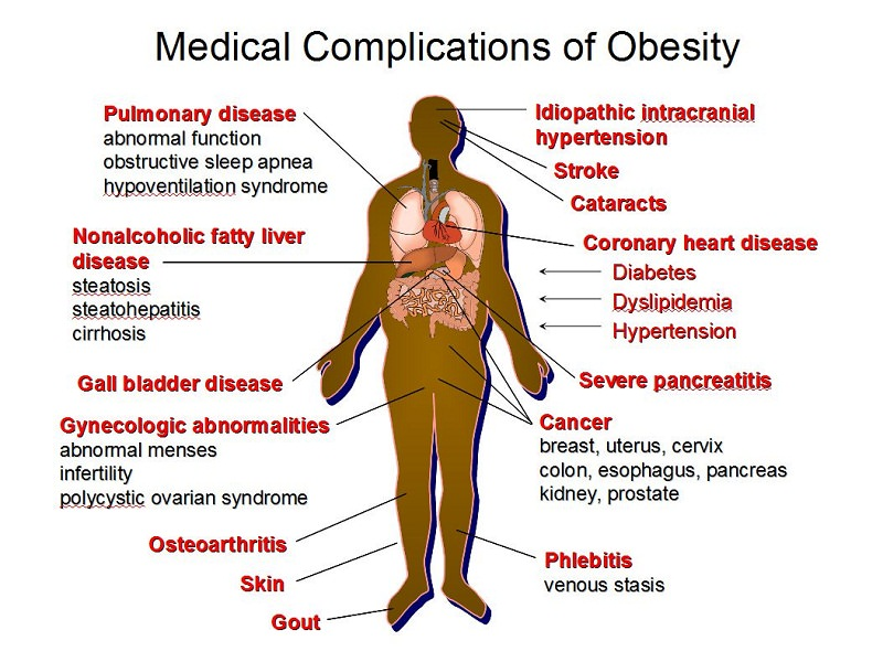 negative effects of obesity What are the health risks of overweight and obesity learn about the risks for adults from many diseases and conditions, by national heart, lung and blood institute.