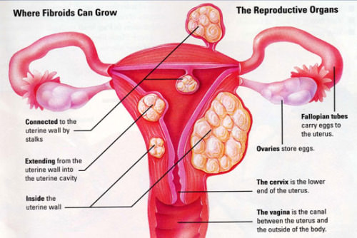 Image result for Menorrhagia
